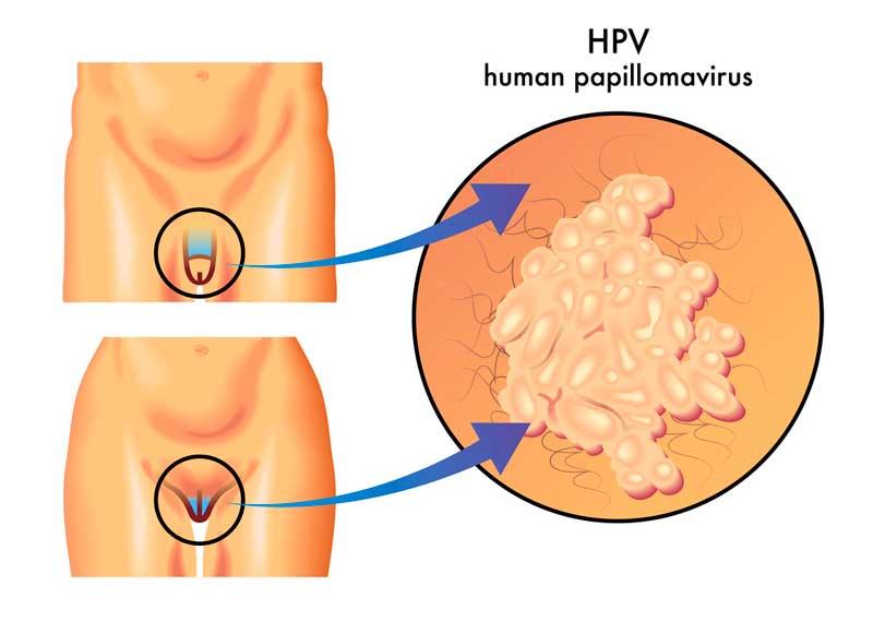 Fotos papiloma humano verrugas genitales 76