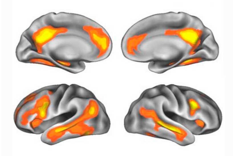 perdida memoria embarazo imagenes del cerebro