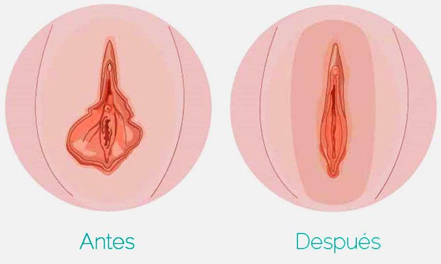 hipertrofia en labios menores el antes y el después