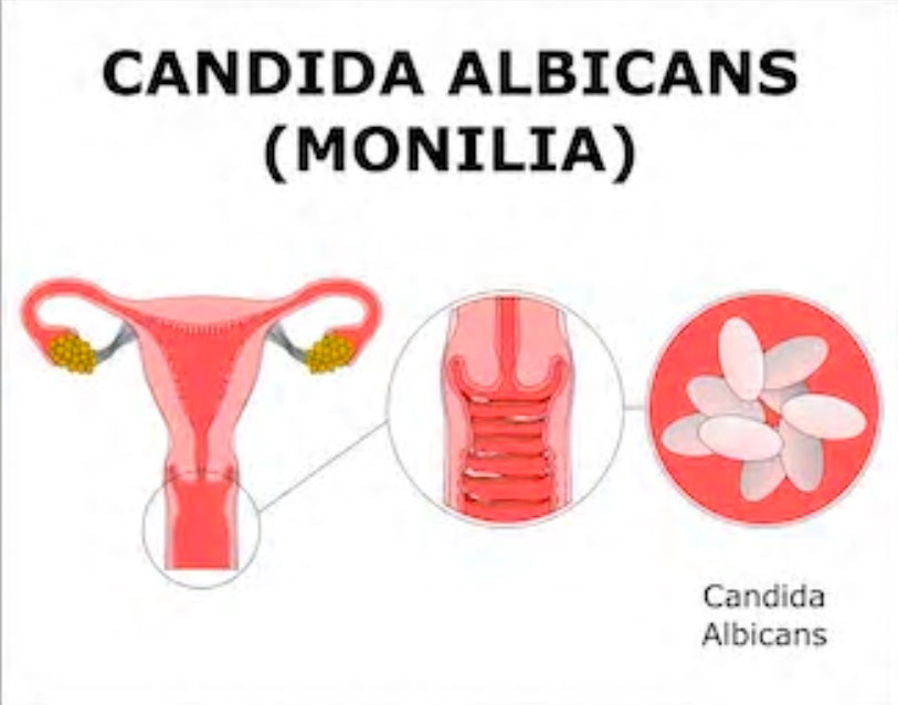 foto candidiasis vaginal