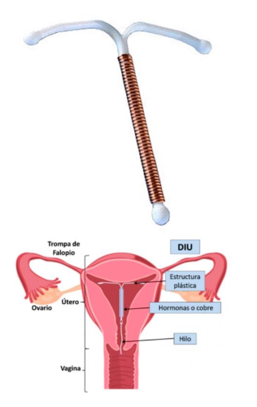 diu y los metodos anticonceptivos