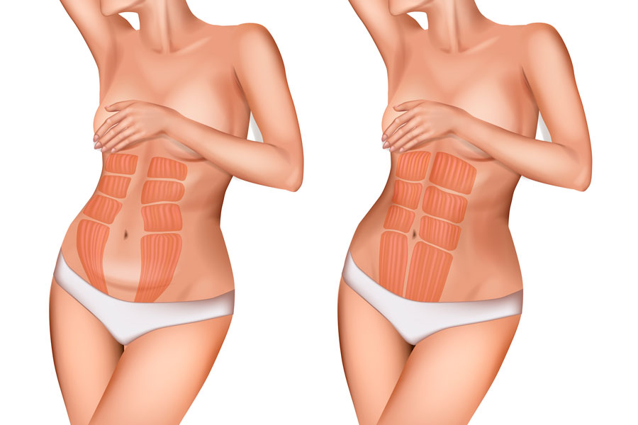 portada de la diastasis abdominal