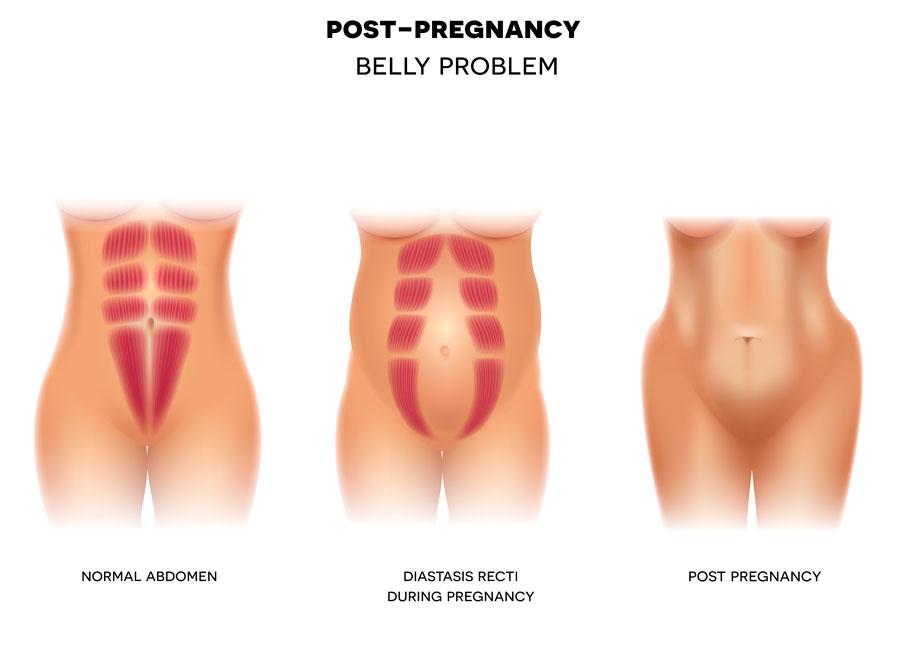 diastasis abdominal y sus ejercicios